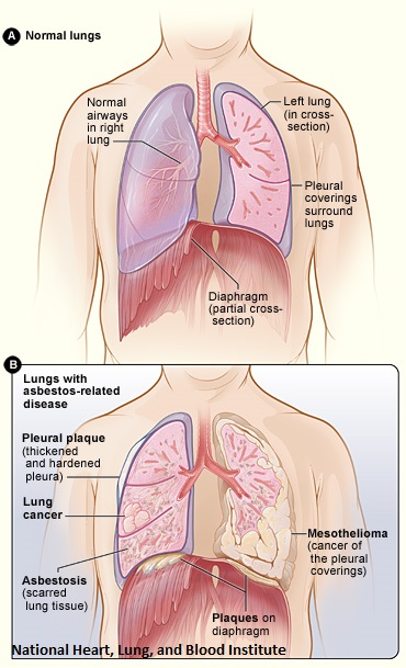 Image of Asbestos Infected Lungs
